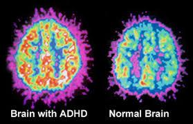 ADHDbrain